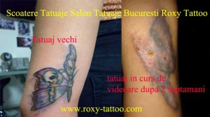inlaturare stergere indepartare eliminare tatuaj tatuaje salon tatauje bucuresti roxy tattoo